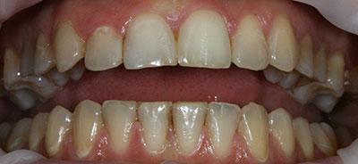 Отбеливание зубов Opalescence - melioradentru